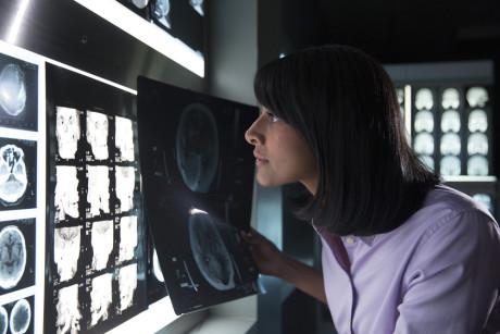 IBM_Watson_røntgen
